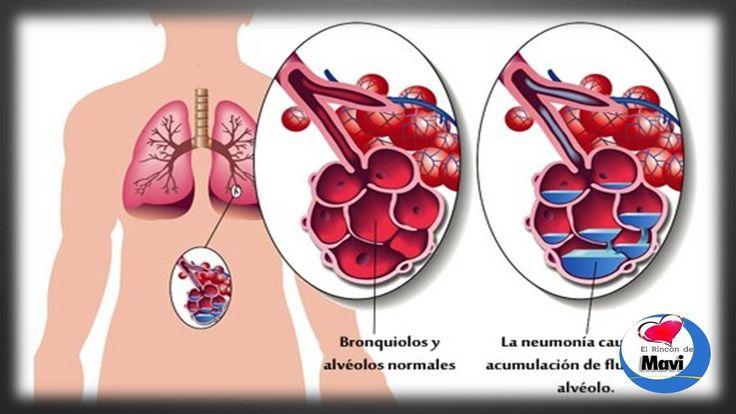 Remedios caseros y naturales para tratar la neumonia - Sintomas de la ne...