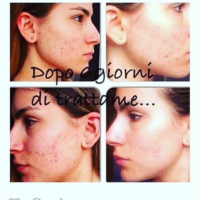 Optimal Set+ Crema viso Q10..Fitline ti aiuta a risolvere anche u problemi di acne. Vuoi scoprire tutti i nostri prodotti..www.6392006.well24.com.  per qualsiasi info, contattami