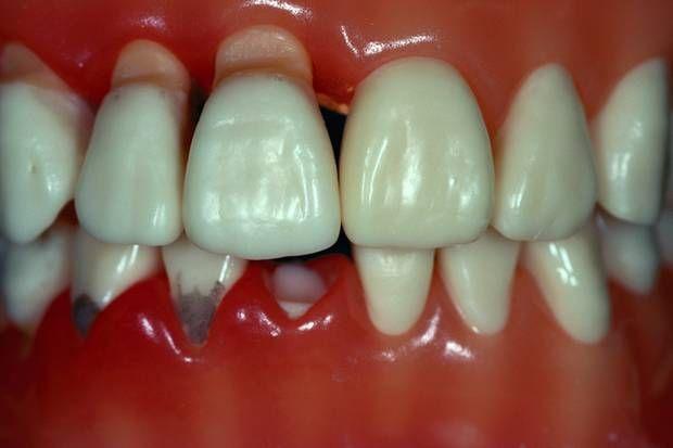 Ist das Zahnfleisch entzündet, drohen die ersten Zähne auszufallen