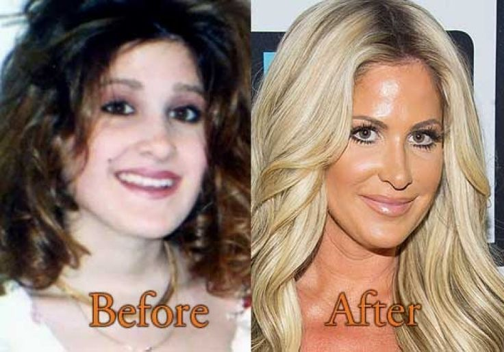Tamra Barney Before And After Plastic Surgery tamra barney plastic surgery before and after boob job botox