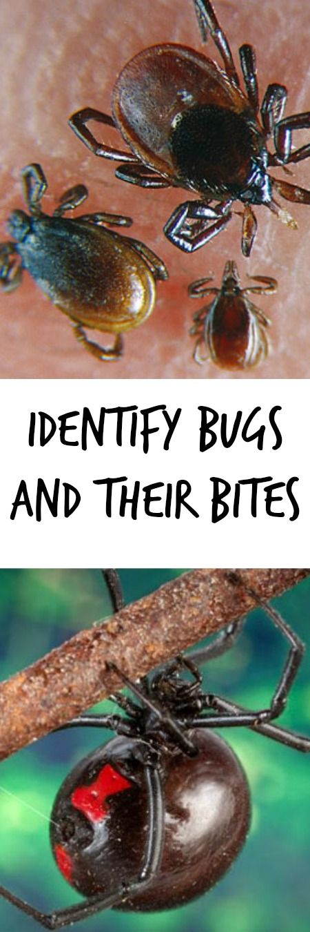 Learn to Identify ticks, spiders, fleas and other bugs.  See what their bites and stings look like.  See how to find relief.