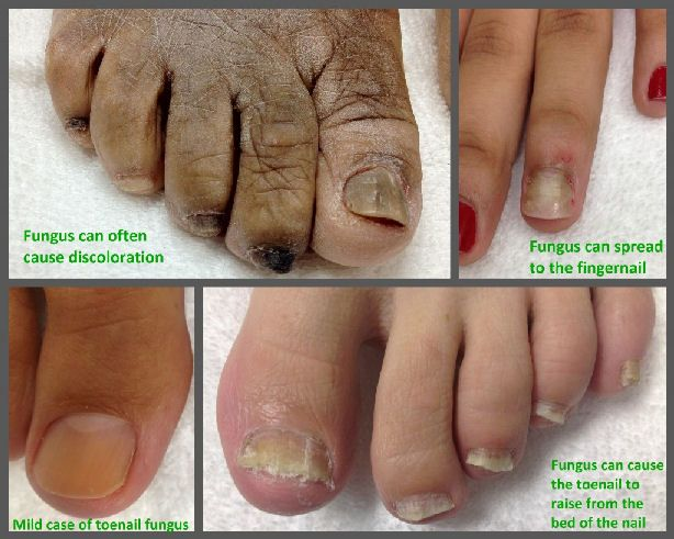 38 best Nail Fungus images on Pinterest