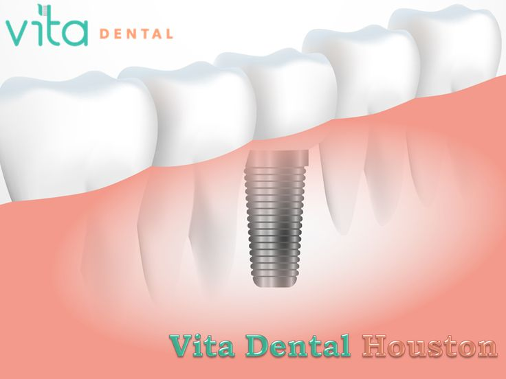 Introduction: Vita Dental Houston -A Family Dentist Care ...