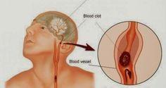Ένας νευρολόγος λέει ότι, εφόσον ένα εγκεφαλικό επεισόδιο μέσα σε 3 ώρες τύχει νοσηλείας, μπορεί να αντιστραφεί πλήρως από τις επιπτώσ...