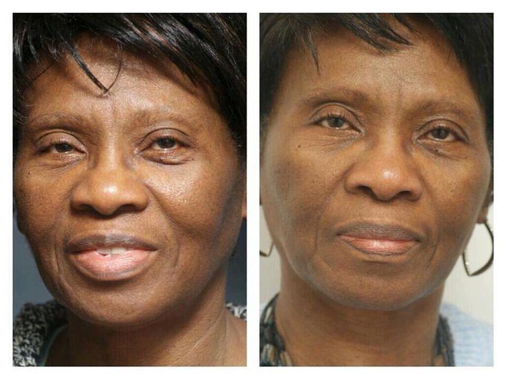 Vrais personnes, vrais résultats. Une image vaut plus que milles mots. www.powerbeauty.ca
