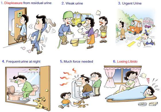 Benign prostatic hyperplasia (BPH) #Livingwithprostateproblems