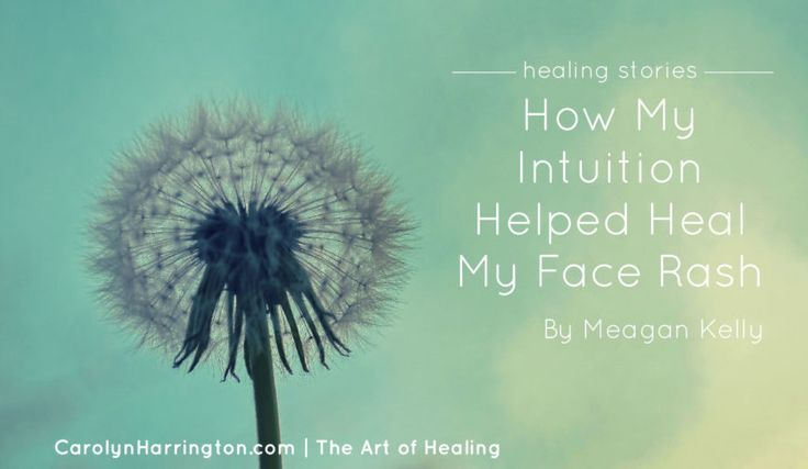 Meagan Kelly shares her story on how she healed the skin rash on her face, changed her lifestyle, and the important lesson she learned along the way.