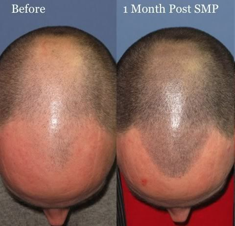 What Is in the Ink Used for Scalp Micropigmentation (SMP)?
