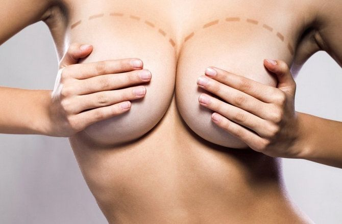 Beyond Beauty: Reasons for Breast Surgery