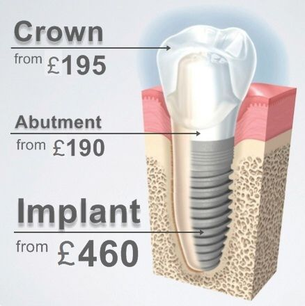 Image from http://www.bestbudapestdentist.com/images/teeth_implants_cost_hungary.jpg.