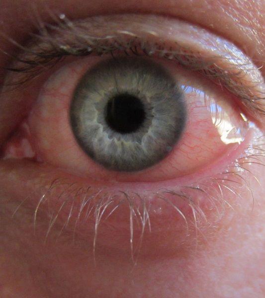Occhi irritati? 10 rimedi naturali fai da te