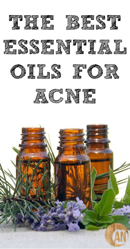 The Best Essential Oils For Acne