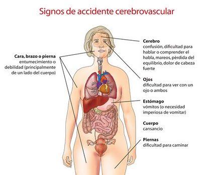 Signos de accidente cerebro vascular
