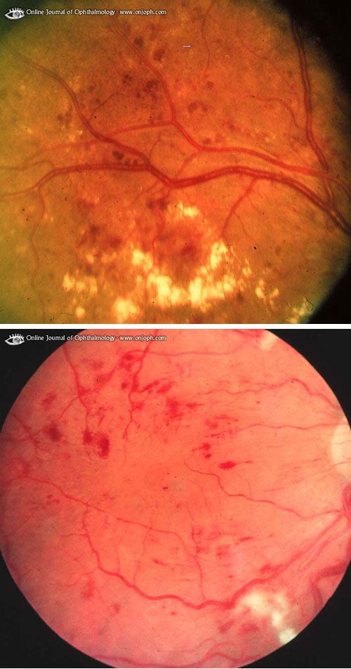 RETINOPATIA DIABETICA NON PROLIFERATIVA Le caratteristiche fundoscopiche di retinopatia diabetica non proliferativa comprendono microaneurismi ed essudati duri (in alto) ed emorragie puntiformi e noduli cotonosi (in basso).