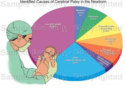 This chart shows a percentage of the causes of Cerebral Palsy. Cerbral palsy can be caused by maternal infections (such as chickenpox and syphilis), Infant infections (menningits), or due to lack of oxygen.