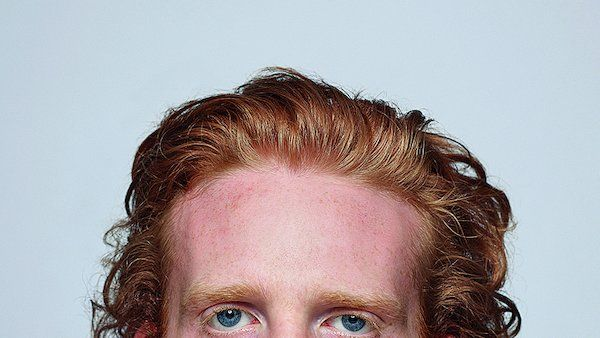 Redhead deposits aren't wanted at the world's largest sperm bank, leading a photographer to document gingers in all their blazing, freckled varieties.