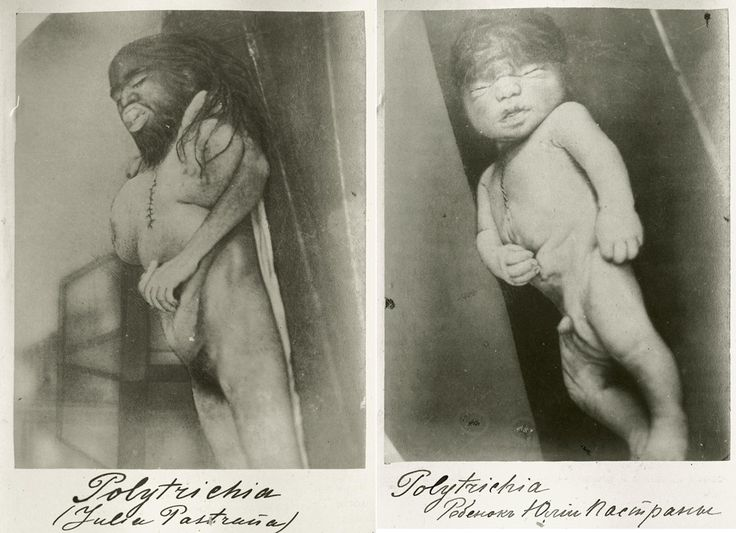 Behold! The Heartbreaking, Hair-Raising Tale Of Freak Show Star Julia Pastrana, Mexico's Monkey Woman----> a very interesting article