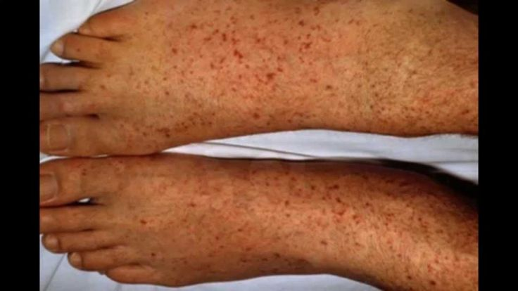 Interesting info on Rocky Mountain Tick Fever Rashes And Signs