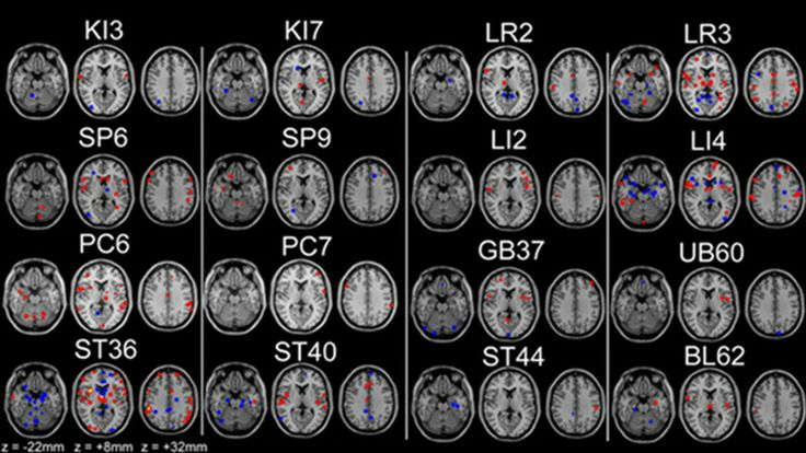 Proof That Acupuncture Really Does Activate Specific Parts of the Brain