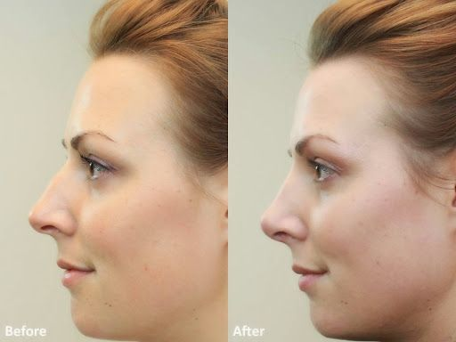 Nose Reshaping (Rhinoplasty) Before And After Pictures