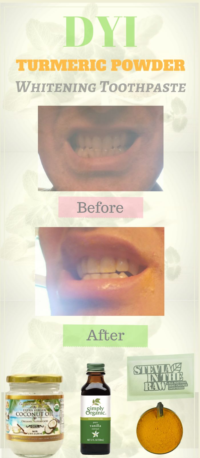 """Check it out --> http://wp.me/p5BOvk-A9 Seen any turmeric benefits outside of using curcumin? Some of the best natural beauy tips actually come from knowing how to use coconut oil & turmeric for natural teeth whitening. gum health, bad breath, and cavities: Turmeric and coconut oil, in fact, is a replacement for dangerous commercial """"natural"""" toothpastes. But honestly, even whitening teeth with turmeric v hydrogen peroxide & baking soda to make your teeth white is no contest. Check it out."""