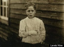 The 1912 photograph of a boy who injured his hand working in a textile factory by social reformer Lewis Hine made the boy, Giles Edmund Newsom, the face of child labor in the U.S. Sympathy for his circumstances spurred efforts to safeguard children from such work.