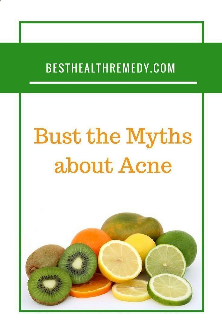 Acne Eliminate Your Acne - I thought it would be rather interesting to have look at some common myths about acne as I am sure that most of us have heard one or the other myths at one time or another. Herbal tea for acne, facial scrub for acne, back acne, myths about acne, acne myths, fight acne, adult acne, adult acne causes, adult acne treatment, adult acne home remedies, adult acne medication, adult acne products, hormonal acne, what is acne Amazing all-natural clear skin breakthroug...