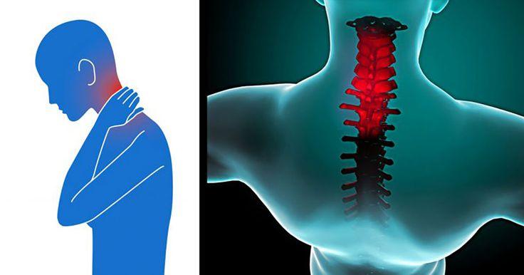 Gli esercizi per eliminare il dolore cervicale una volta per tutte
