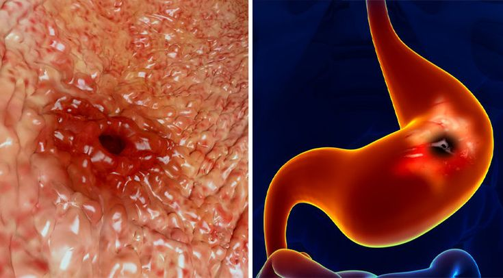 THIS IS WHY YOU NEED TO STOP DRINKING COFFEE ON AN EMPTY STOMACH!