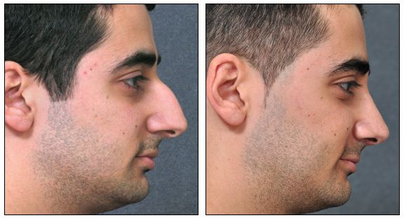 Surgeonly.com helps to find Rhinoplasty surgeon in Houston. They give a perfect and sculpt shape to your nose.