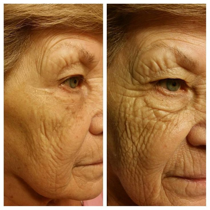 Instantly Ageless changing lives in 2 minutes!