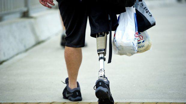 Kunstbenen besturen met je gedachten: Ik kon gewoon gaan staan•• Mensen die ledematen missen, kunnen hun protheses onbewust besturen met hun hersenen dankzij een nieuwe technologie. Die is al lang in ontwikkeling, maar nu is een bedrijf er echt in geslaagd patiënten zo weer op de been te krijgen.
