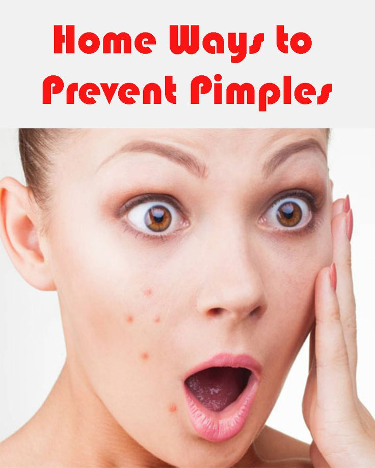 How to lose pimples in a day