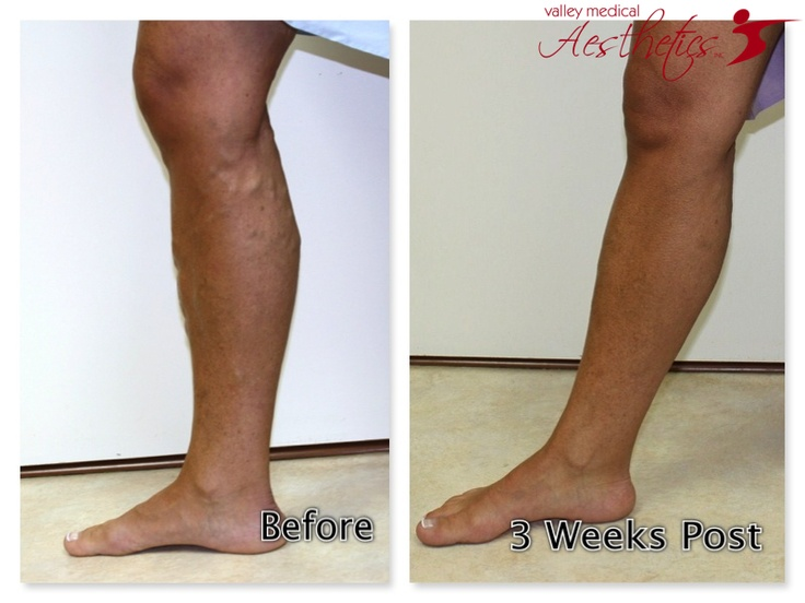 17 Best images about EVLT Varicose Vein Treatment Results ...