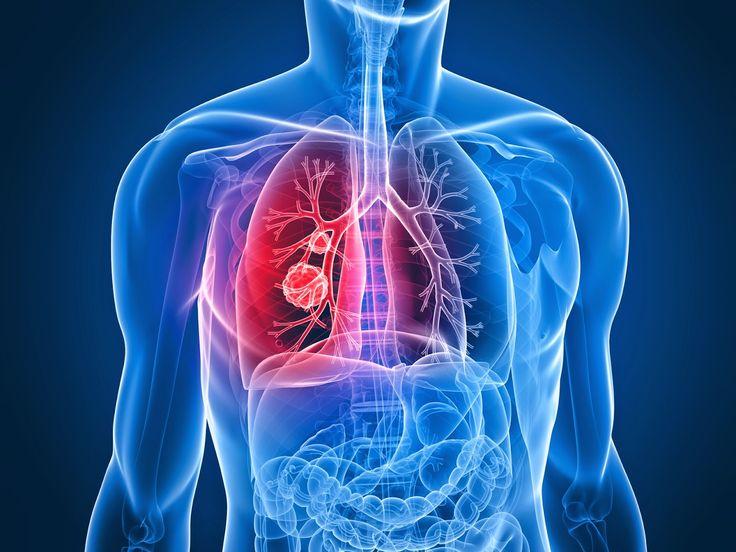 AIRLIFE te dice  los Antecedentes familiares de cáncer de pulmón aumentan las posibilidades de padecer cáncer?  Las personas con padre, madre, hermano o hermana que tuvo cáncer de pulmón pueden tener un ligero aumento en el riesgo de esta enfermedad, aunque no fumen.