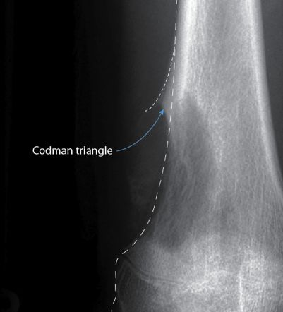 Codman triangle - a distinctive triangular form of periosteal reaction seen when an aggressive bone lesion grows faster than new periosteum can be ossified. Only the periosteum at the very margin of the lesion has time to ossify creating a triangular lip of new bone. The most common causes of a Codman triangle are osteosarcoma, Ewing sarcoma and osteomyelitis. This patient had osteosarcoma.