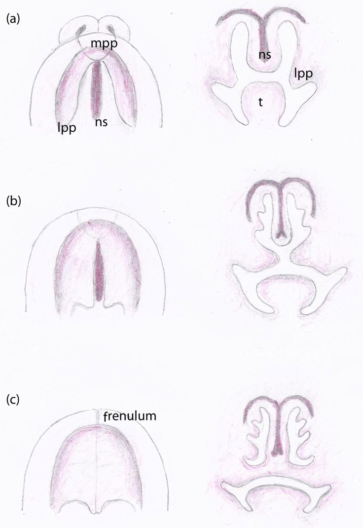Development of the fetal palate from the seventh (a), eighth (b) to the tenth (c) week. The images on the left: the palate as seen from below; on the right, coronal plane through the nasal septum and the developing palate; mpp, median palatine process; lpp, lateral palatine process; ns, nasal septum; t, tongue.
