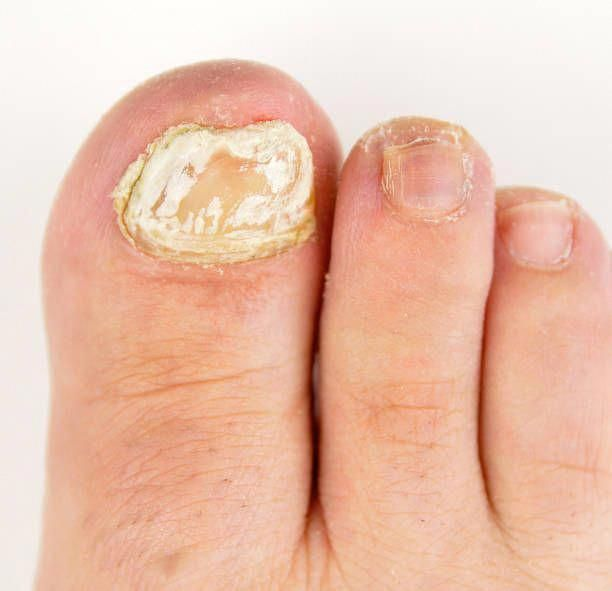 How To Get Rid Of Thick Toenail Fungus-Treating Toenail Fungus After ...
