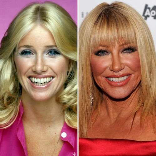 Botox Bonanza!: Lil' Kim, Melanie Griffith and 9 More Stars Who Look Unrecognizable After Plastic Surgery