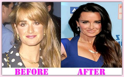 Kyle Richards Plastic Surgery Before And After Kyle Richards Plastic Surgery #KyleRichardsplasticsurgery #KyleRichards #plasticsurgerychanges