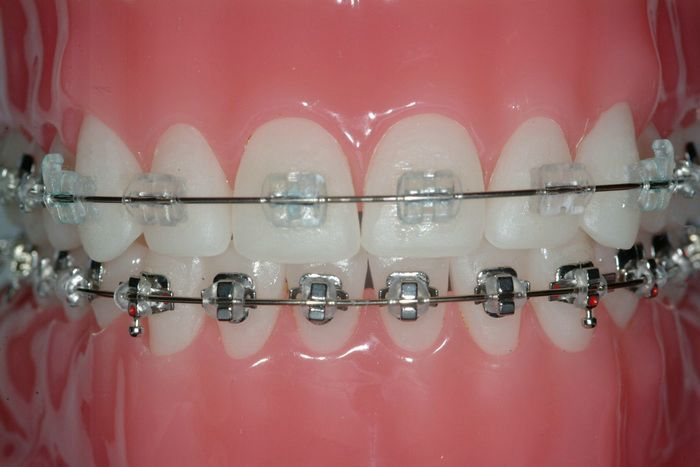 Clear Braces Cost And Metal