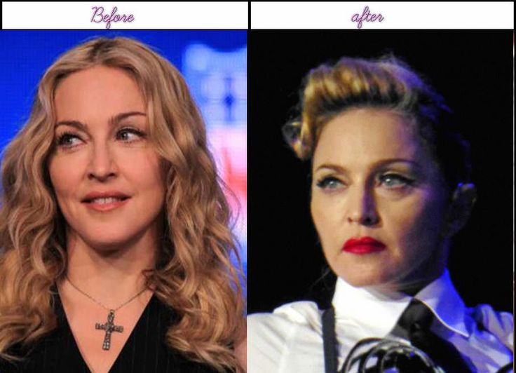 Why And When Madonna At French Press Meet Had Her Plastic Surgery She Appears To Be Best After That - http://www.aftersurgeryjob.com/madonna-french-press-plastic-surgery-appears/