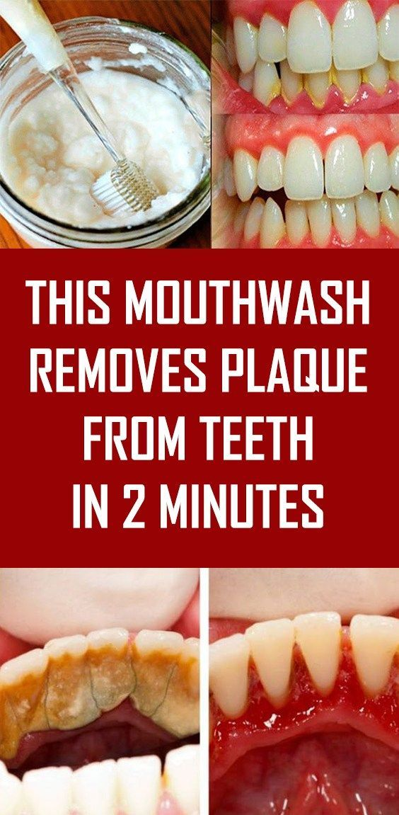 This Mouthwash Removes Plaque From Teeth In 2 Minutes Alluring Teeth Whitening B…