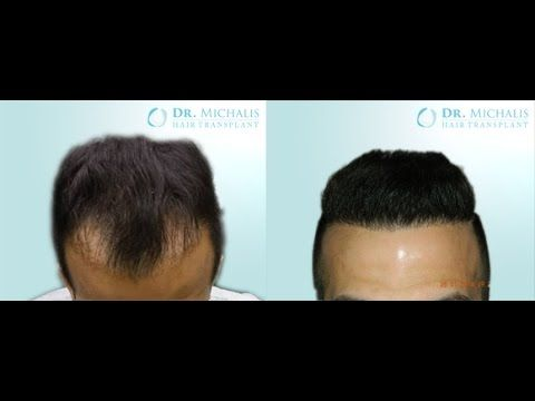 3350 Grafts FUE Hair Transplant Dr. Michalis and scar grafting: for more information visit our website: http://www.hairtransplant-drmichalis.com/real-cases/