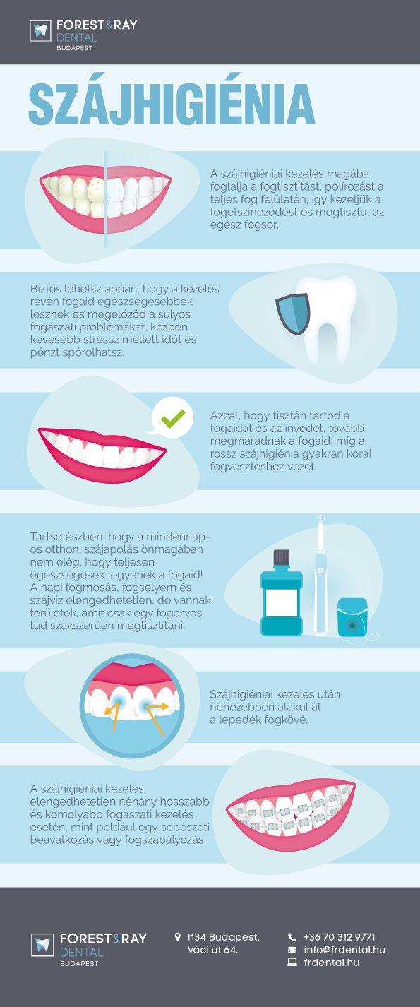 Infografikánkból megtudhatod, mikor van szükség dentálhigiéniai kezelésre, illetve mit kell tenned, hogy az eredmény a lehető legtovább tartson. #fogászat #fogorvos #fogkő #fogápolás #szájhigiénia