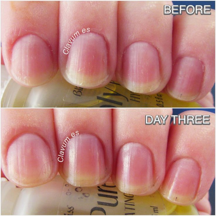 Old Fashioned Why Nails Split Embellishment - Nail Art Ideas ...