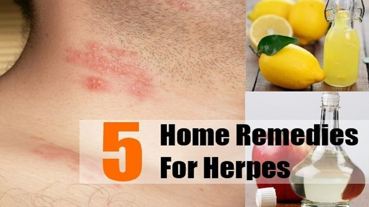what to eat when you have herpes