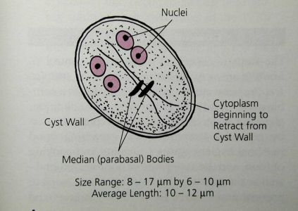 Giardia lamblia (Giardiasis). Infection occurs by ingestion of infective cysts, transmitted by food, water, feces, fomites, and flies. Excystation occurs in the small intestine, where the trophozoites multiply by binary fission, and cysts are passed in feces. Diagnosed by recovery/identification of trophozoites or cysts in feces or duodenal contents. Image from Pinterest, information from Medical Parasitology, A Self-Instructional Text.