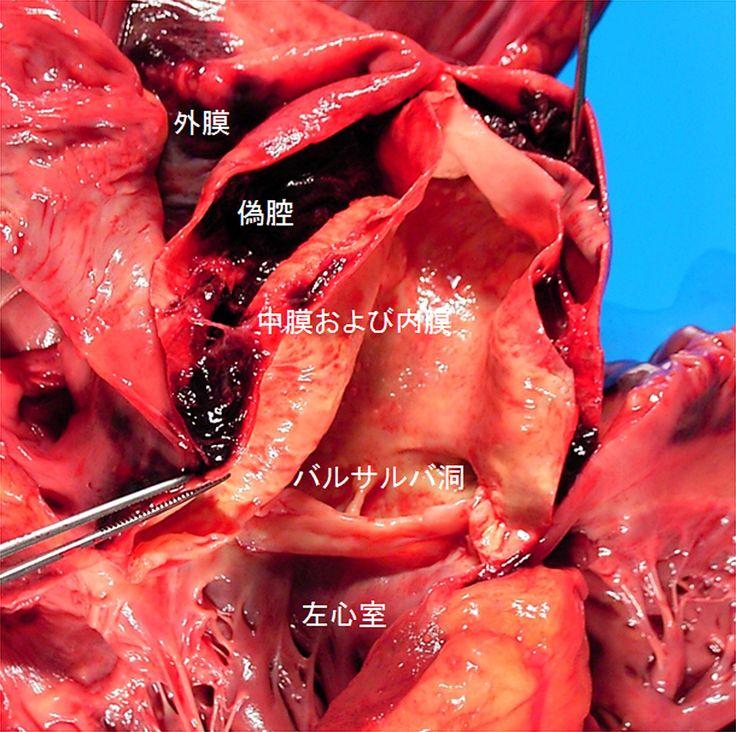 大動脈解離(解離性大動脈瘤)マクロ像