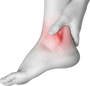 Ankle pain refers to any type of discomfort in your ankles ...
